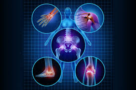 Human Body Joint Inflammation