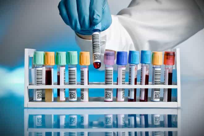 Lab vials with CBD Samples - Drug Test