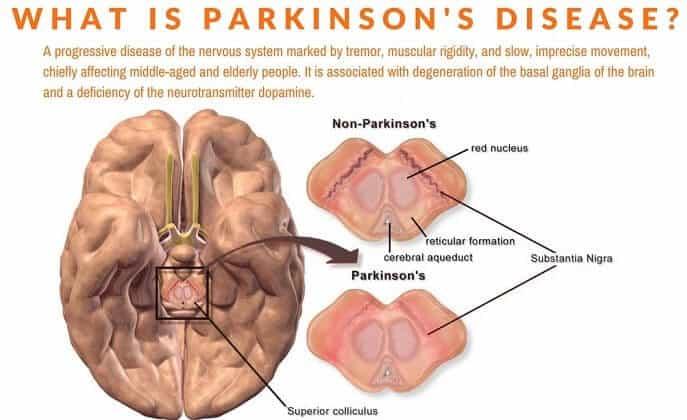cbd parkinson's